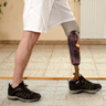 Man with prosthetic in rehabilitation