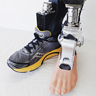 A battery-powered prosthetic ankle.