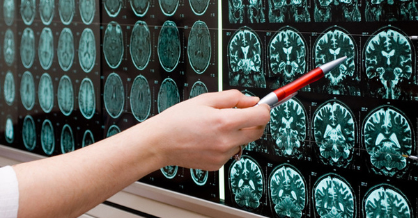 Person holding pen points at brain scans displayed on a light box on the wall.