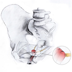 Uterosacral Ligament Suspension
