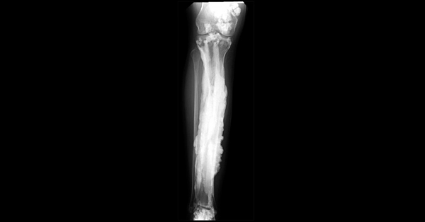 X-ray image of a patient's limb showing the excess bone growth that occurs in melorheostosis, which resembles was from a dripping candle