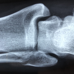 X-ray of human forearm showing elbow, top of radius and ulna