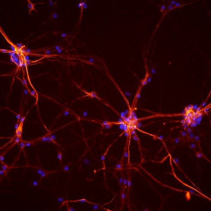 Mouse neurons