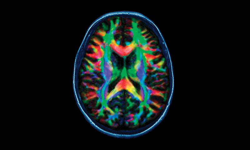 Color-coded brain scan.
