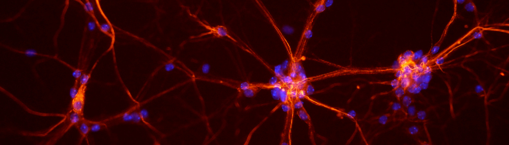 Fluorescent neurons from a mouse spinal cord.