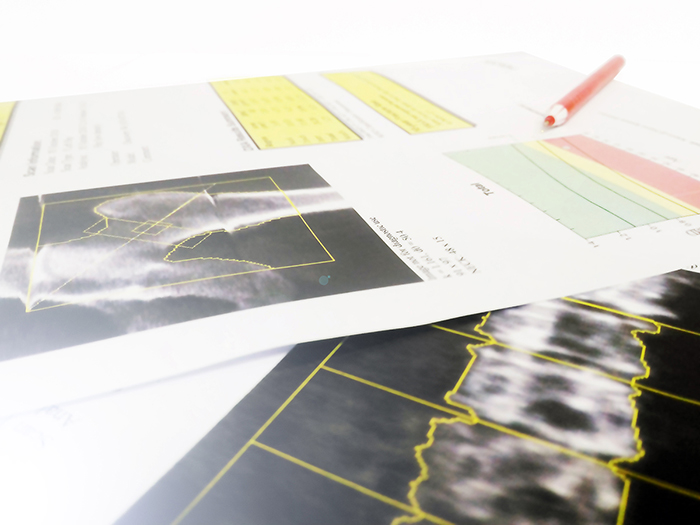 Printed copies of bone scan images on a desk top.