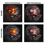 Before and after images showing similar results of MRI and PET scans after chemotherapy for a bone tumor.