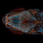 Dorsal view of bones, scales, and lymphatic vessels in a juvenile zebrafish.