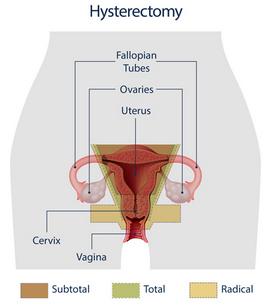 hysterectomy - photo #19