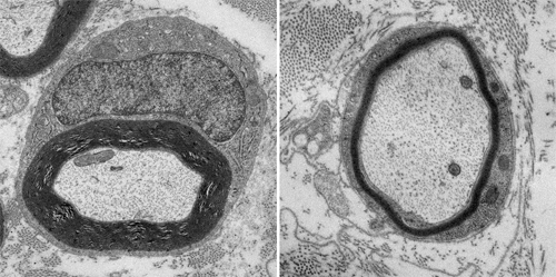 Sciatic nerves from normal mice (left) and mice lacking PIK4A (right). Loss of PIK4A leads to abnormal nerves that lack sufficient myelin. Credit: NICHD/NIH