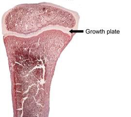 Cross section of a rabbit bone showing the growth plate