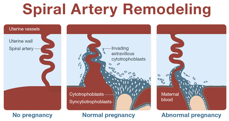 Spiral Artery Remodeling