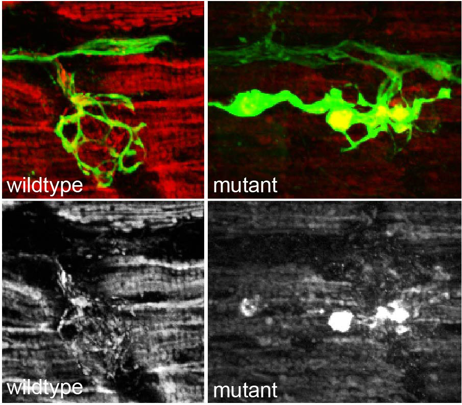 Image of mitochondria-dynein interaction during retrograde transport; wildtype vs mutant; color and black and white images shown.