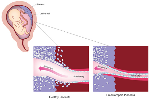 Comparison of healthy placental cells and Preeclampsia placental cells