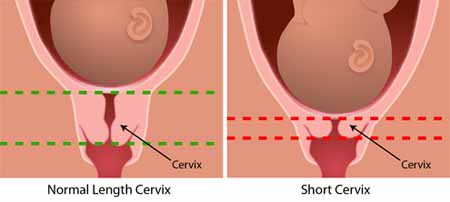 Graphic showing a normal size cervix and a short cervix.