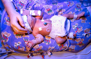 Premature baby boy undergoing phototherapy with ultra violet lighting